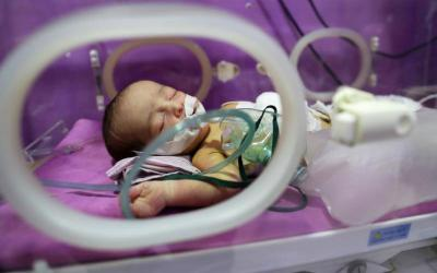 An unnamed child with a rare congenital birth defect called esophageal atresia is seen in Damascus Countryside Specialized Hospital in Douma, Syria, Oct. 11, 2017. (CNS photo by Mohammed Badra/EPA)